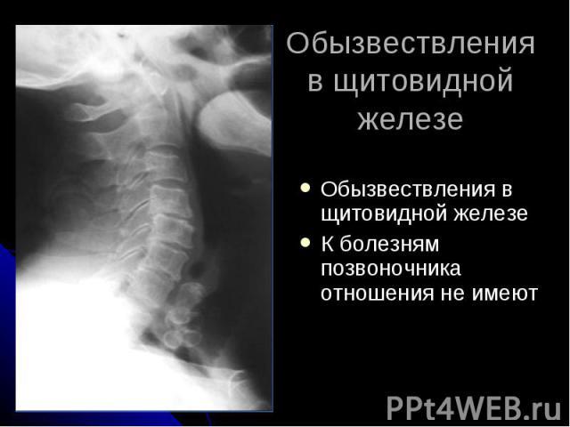 Обызвествления в щитовидной железе Обызвествления в щитовидной железе К болезням позвоночника отношения не имеют