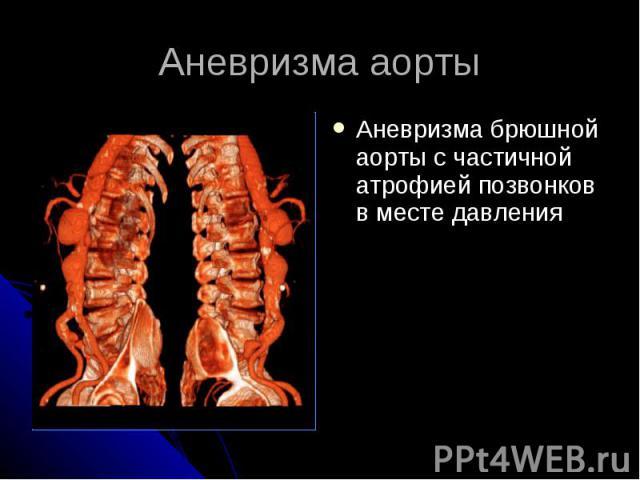 Аневризма аорты Аневризма брюшной аорты с частичной атрофией позвонков в месте давления