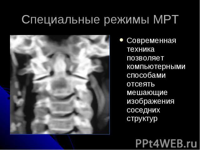 Специальные режимы МРТ Современная техника позволяет компьютерными способами отсеять мешающие изображения соседних структур