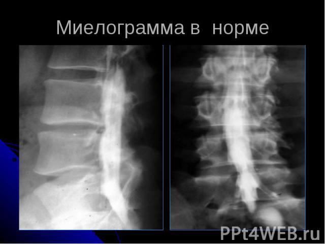Миелограмма в норме
