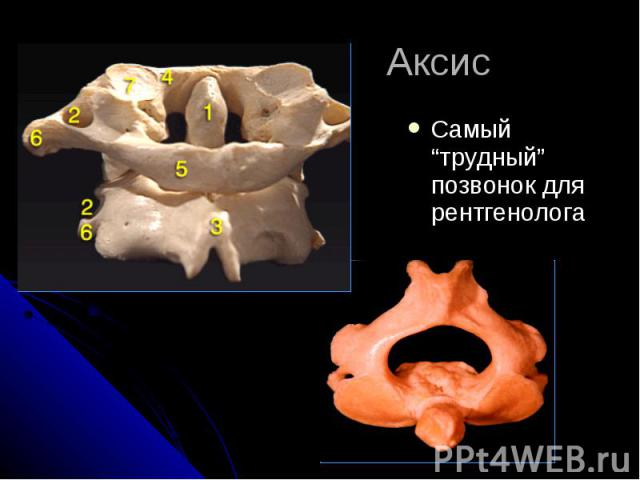 """Аксис Самый """"трудный"""" позвонок для рентгенолога"""