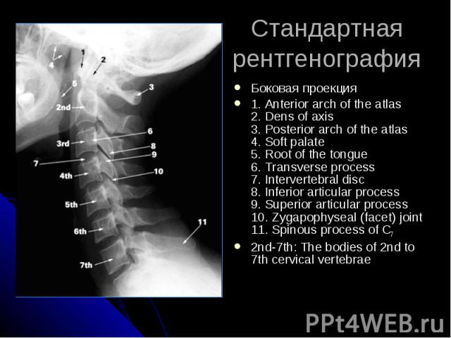 Стандартная рентгенография Боковая проекция 1. Anterior arch of the atlas 2. Dens of axis 3. Posterior arch of the atlas 4. Soft palate 5. Root of the tongue 6. Transverse process 7. Intervertebral disc 8. Inferior articular process 9. Superior arti…