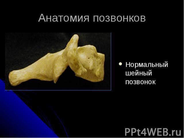 Анатомия позвонков Нормальный шейный позвонок