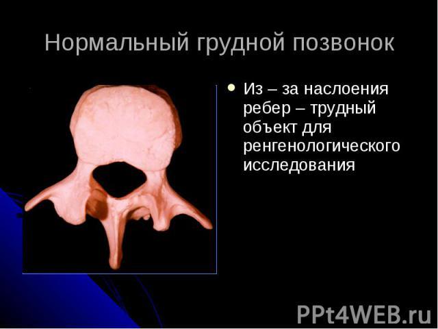 Нормальный грудной позвонок Из – за наслоения ребер – трудный объект для ренгенологического исследования
