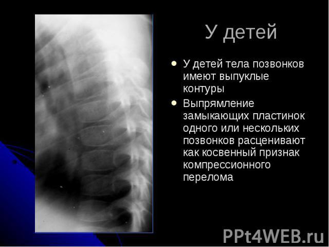 У детей У детей тела позвонков имеют выпуклые контуры Выпрямление замыкающих пластинок одного или нескольких позвонков расценивают как косвенный признак компрессионного перелома