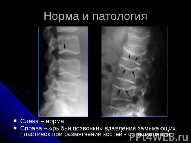Норма и патология Слева – норма Справа – «рыбьи позвонки» вдавления замыкающих пластинок при размягчении костей - остеомаляции