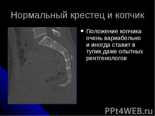 Нормальный крестец и копчик Положение копчика очень вариабельно и иногда ставит в тупик даже опытных рентгенологов