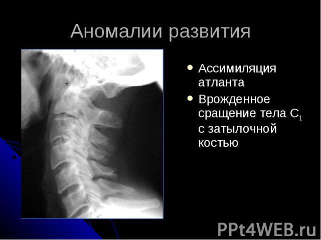 Аномалии развития Ассимиляция атланта Врожденное сращение тела С1 с затылочной костью