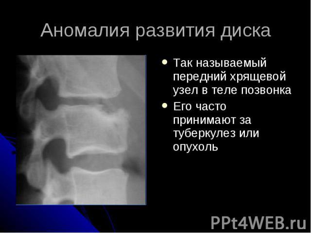 Аномалия развития диска Так называемый передний хрящевой узел в теле позвонка Его часто принимают за туберкулез или опухоль