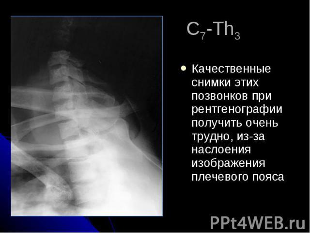 С7-Th3 Качественные снимки этих позвонков при рентгенографии получить очень трудно, из-за наслоения изображения плечевого пояса