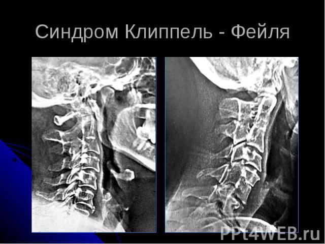 Синдром Клиппель - Фейля