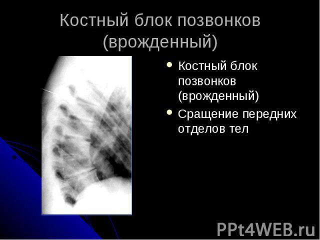 Костный блок позвонков (врожденный) Костный блок позвонков (врожденный) Сращение передних отделов тел