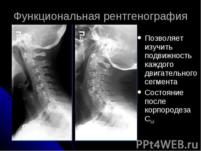 Функциональная рентгенография Позволяет изучить подвижность каждого двигательного сегмента Состояние после корпородеза C5,6