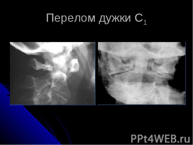 Перелом дужки С1