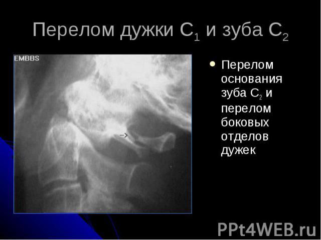 Перелом дужки С1 и зуба С2 Перелом основания зуба С2 и перелом боковых отделов дужек