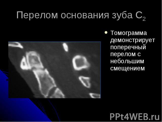 Перелом основания зуба С2 Томограмма демонстрирует поперечный перелом с небольшим смещением