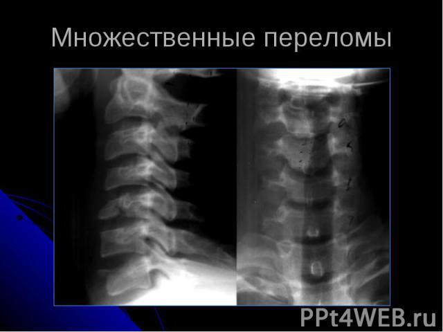 Множественные переломы