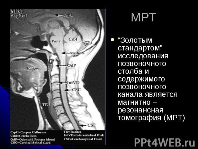 """МРТ """"Золотым стандартом"""" исследования позвоночного столба и содержимого позвоночного канала является магнитно – резонансная томография (МРТ)"""