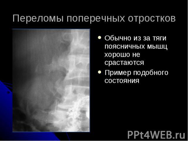 Переломы поперечных отростков Обычно из за тяги поясничных мышц хорошо не срастаются Пример подобного состояния