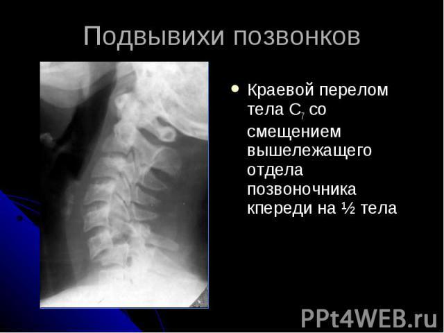 Подвывихи позвонков Краевой перелом тела С7 со смещением вышележащего отдела позвоночника кпереди на ½ тела