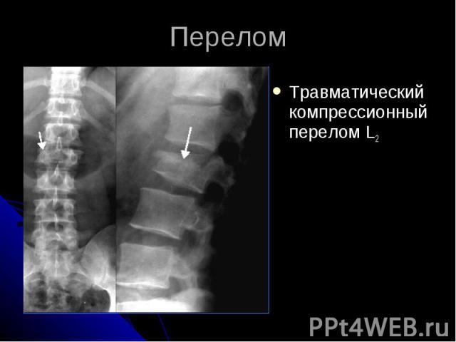 Перелом Травматический компрессионный перелом L2