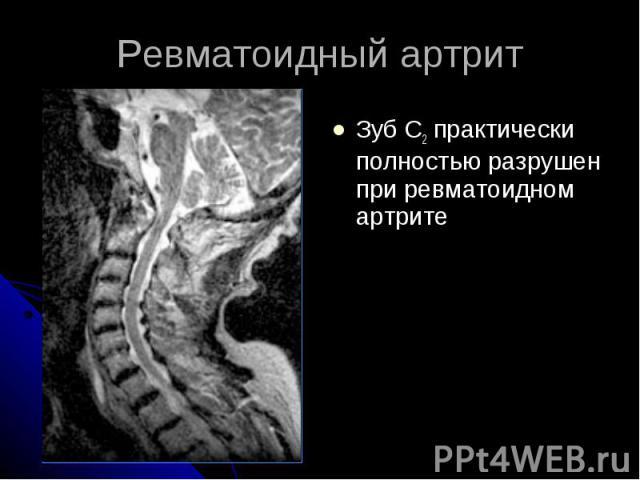 Ревматоидный артрит Зуб С2 практически полностью разрушен при ревматоидном артрите