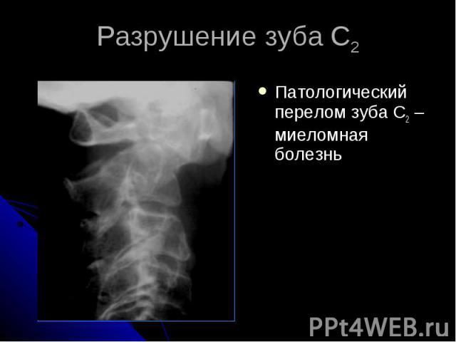 Разрушение зуба С2 Патологический перелом зуба С2 – миеломная болезнь