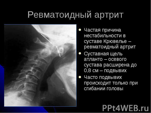 Ревматоидный артрит Частая причина нестабильности в суставе Крювелье – ревматоидный артрит Суставная щель атланто – осевого сустава расширена до 0,8 см – подвывих Часто подвывих происходит только при сгибании головы