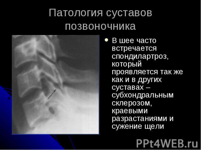 Патология суставов позвоночника В шее часто встречается спондилартроз, который проявляется так же как и в других суставах – субхондральным склерозом, краевыми разрастаниями и сужение щели