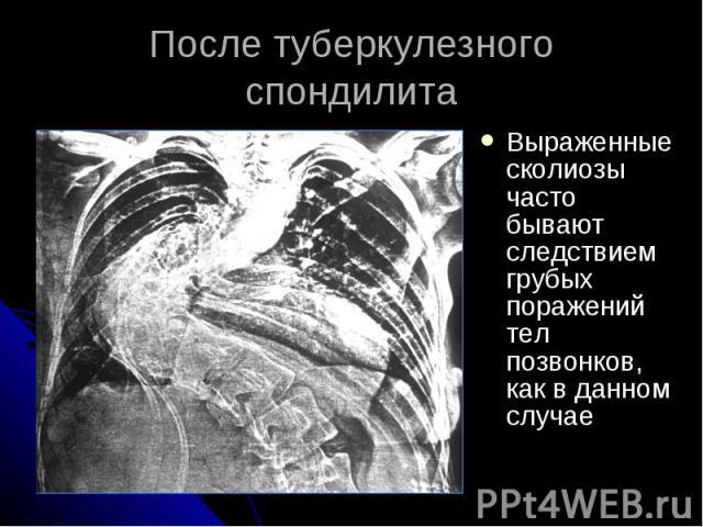 После туберкулезного спондилита Выраженные сколиозы часто бывают следствием грубых поражений тел позвонков, как в данном случае
