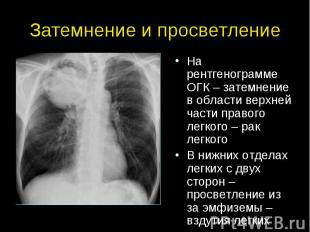 Затемнение и просветление На рентгенограмме ОГК – затемнение в области верхней ч