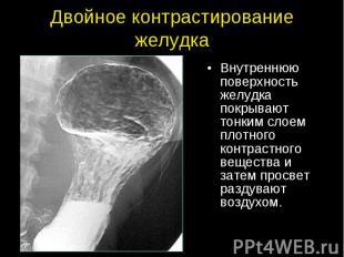 Двойное контрастирование желудка Внутреннюю поверхность желудка покрывают тонким