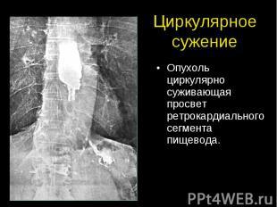 Циркулярное сужение Опухоль циркулярно суживающая просвет ретрокардиального сегм