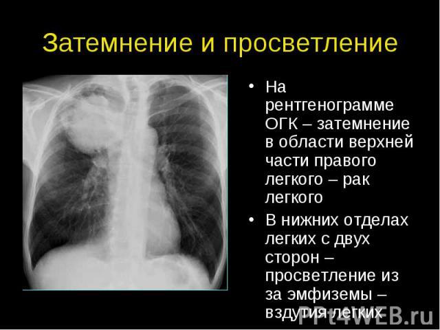 Затемнение и просветление На рентгенограмме ОГК – затемнение в области верхней части правого легкого – рак легкого В нижних отделах легких с двух сторон – просветление из за эмфиземы – вздутия легких