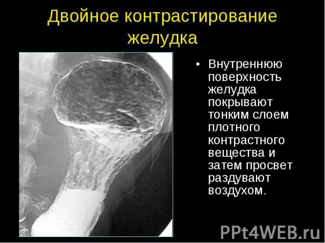 Двойное контрастирование желудка Внутреннюю поверхность желудка покрывают тонким слоем плотного контрастного вещества и затем просвет раздувают воздухом.