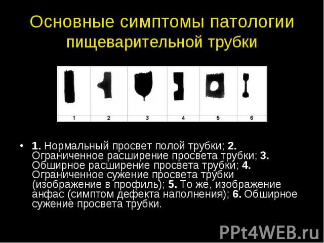 Основные симптомы патологии пищеварительной трубки 1. Нормальный просвет полой трубки; 2. Ограниченное расширение просвета трубки; 3. Обширное расширение просвета трубки; 4. Ограниченное сужение просвета трубки (изображение в профиль); 5. То же, изо…