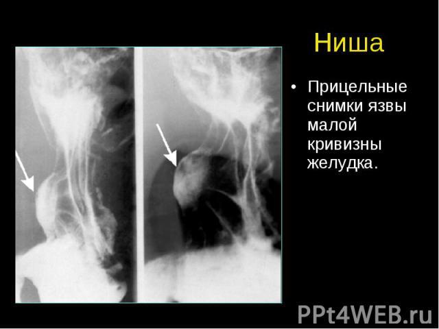 Ниша Прицельные снимки язвы малой кривизны желудка.