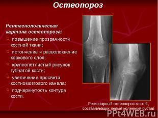 повышение прозрачности костной ткани; истончение и разволокнение коркового слоя;