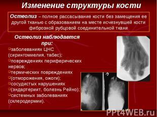 Остеолиз – полное рассасывание кости без замещения ее другой тканью с образовани