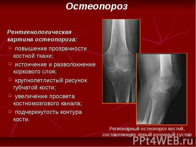 повышение прозрачности костной ткани; истончение и разволокнение коркового слоя; крупнопетлистый рисунок губчатой кости; увеличение просвета костномозгового канала; подчеркнутость контура кости.