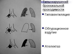 Типы нарушений бронхиальной проходимости Гиповентиляция Обтурационное вздутие Ат