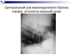 Центральный рак верхнедолевого бронха справа, ателектаз верхней доли