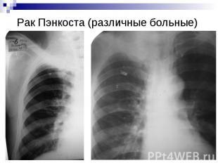 Рак Пэнкоста (различные больные)