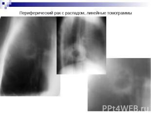 Периферический рак с распадом, линейные томограммы