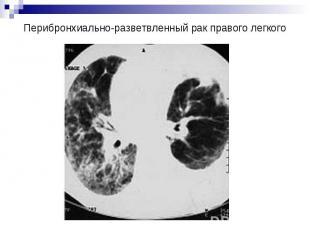 Перибронхиально-разветвленный рак правого легкого