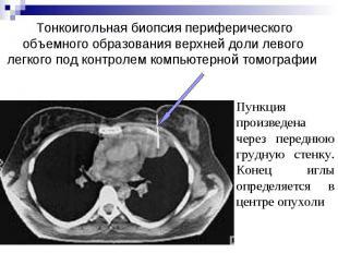 Тонкоигольная биопсия периферического объемного образования верхней доли левого