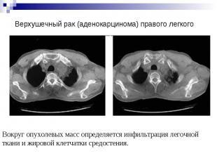 Верхушечный рак (аденокарцинома) правого легкого