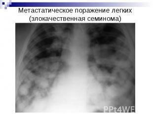 Метастатическое поражение легких (злокачественная семинома)
