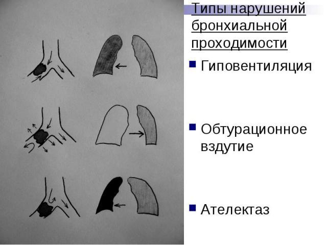 Типы нарушений бронхиальной проходимости Гиповентиляция Обтурационное вздутие Ателектаз