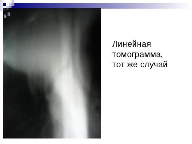 Линейная томограмма, тот же случай